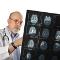 [Hajlamos Ön a stroke-ra? A stroke rizikófaktorai