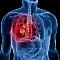 [Milyen tünetek utalhatnak a tüdőrákra?