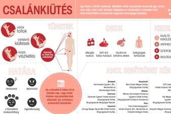 A csalánkiütésről (infografika)