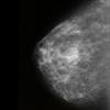 Mammográfia: mell