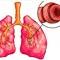 [Az asztma szövődményei, következményei