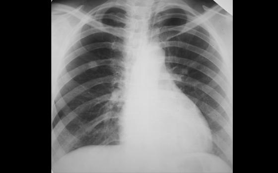 Tüdőrák röntgen
