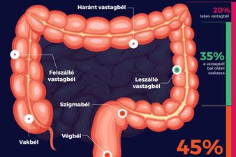 A fekélyes vastagbélgyulladásról (colitis ulcerosa)
